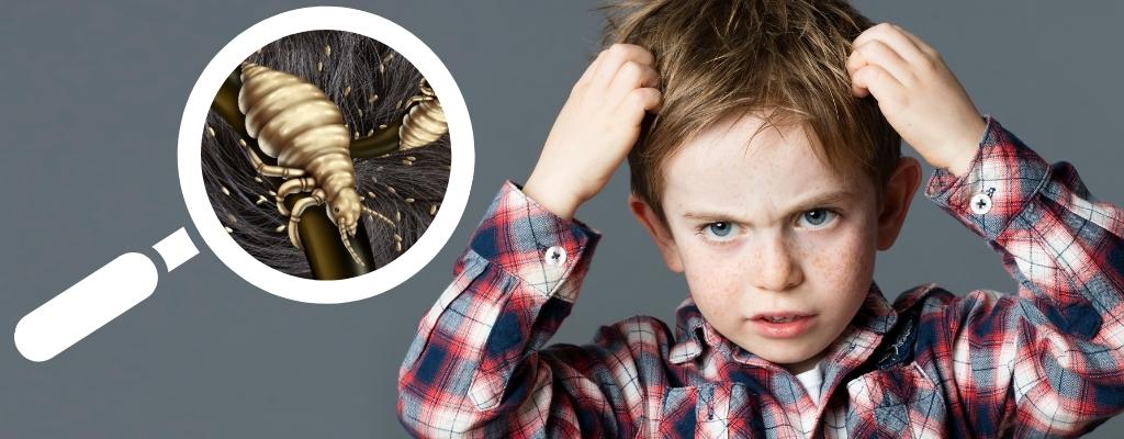 ¿Cómo prevenir y tratar los piojos?