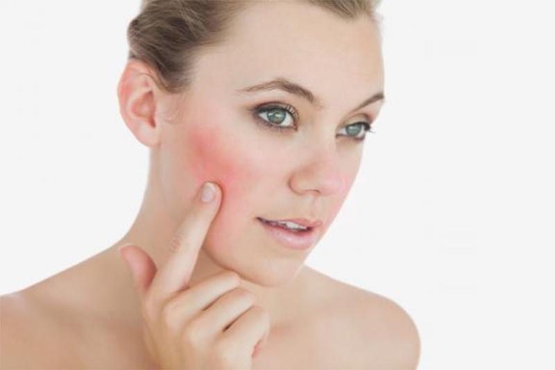 Cómo cuidar la piel rosácea